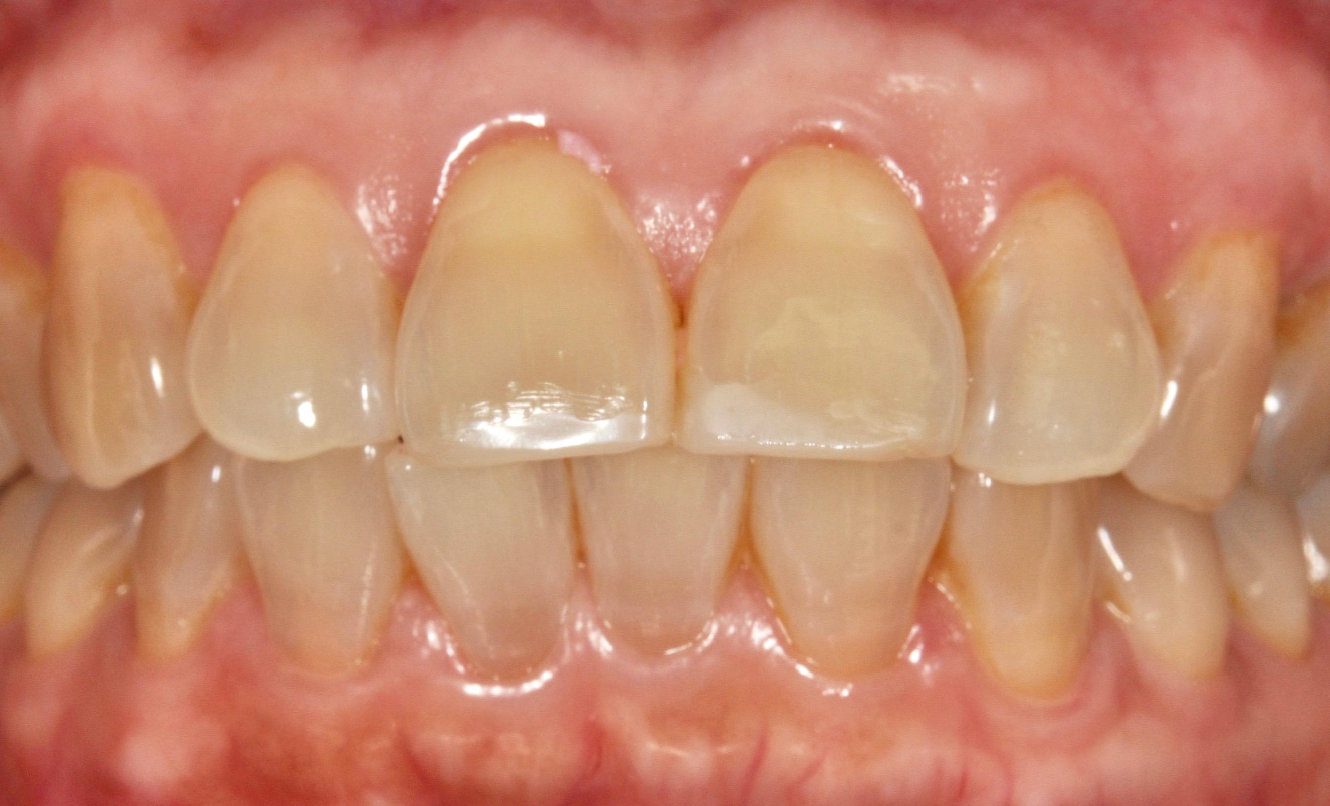 虫歯 黒い 初期